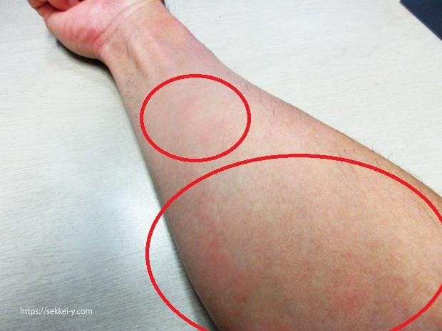 腕の痒み 湿疹